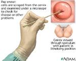 Цитологично изследване (цитонамазка) - това изследване е скринингов метод за установяване на изменения в епителните клетки на маточната шийка. Препоръчва се цитонамазка да се провежда поне веднъж годишно при всяка жена след 21-годишна възраст или три години след началото на полов живот. Извършва се при гинекологичен преглед, като чрез специална методика с четчица се обтрива външната част на маточната шийка и цервикалния канал.